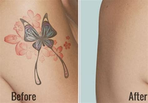 natural remedies for tattoo removal 7 best dermabrasion removal images on