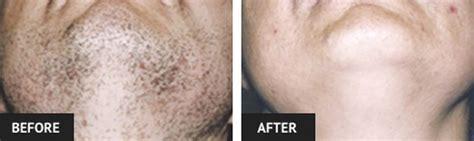 medical heavy hair on vigina st louis laser hair removal laser hair removal before and