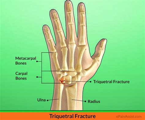Triquetral Fracture: Treatment, Exercises, Causes ... Fractured Wrist Treatment