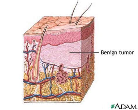 benign tumor on images