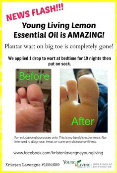 1000 ideas about plantar wart removal on