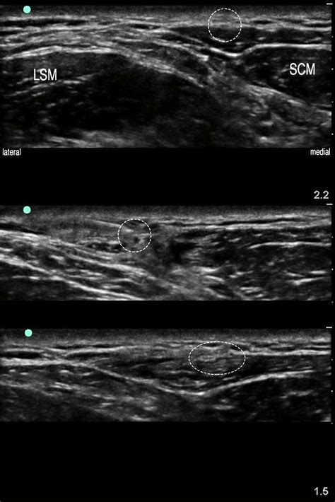 Face,Head & Neck — Highland EM Ultrasound Fueled pain