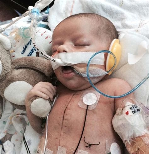newborn with heart defect saved after 13 hour operation