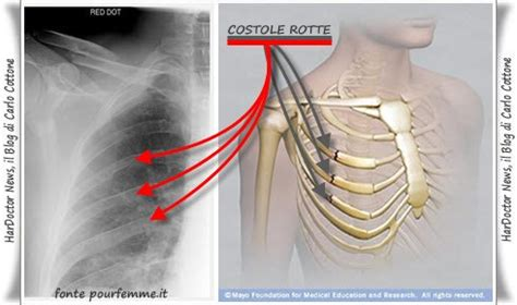 dolore alla gabbia toracica frattura delle costole
