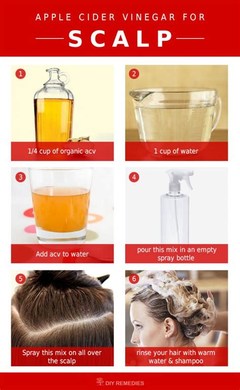 itching remedies apple cider vinegar how to use apple cider vinegar for scalp