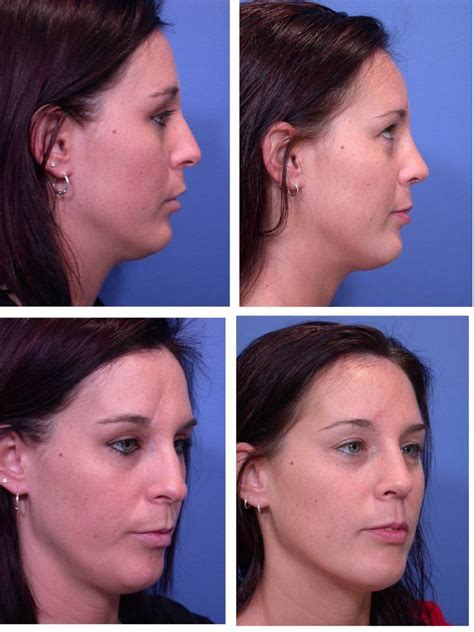 surgery cost how much is rhinoplasty surgery cosmetic plastic surgery