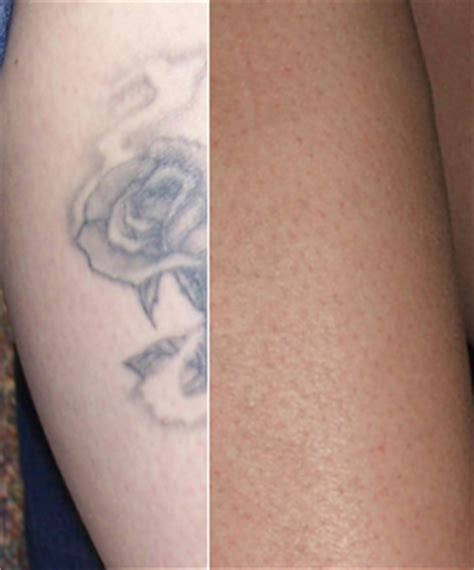 tattoo removal does it work how does laser removal work