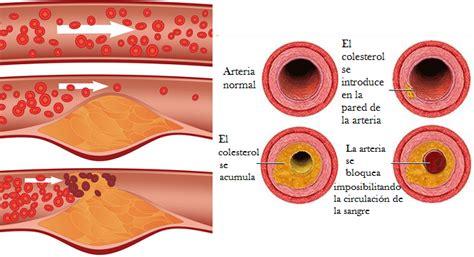 alimentos malos para el colesterol y trigliceridos colesterol bueno o hdl y malo o ldl triglic 233 ridos y