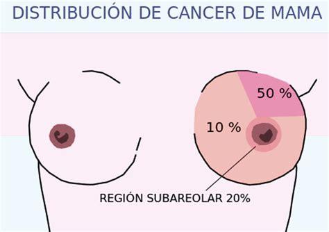 imagenes gratis cancer de mama cancer de mama la trofolog 237 a