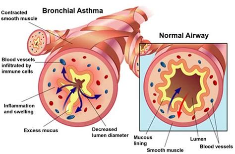 asthma diagram heal yourself at home