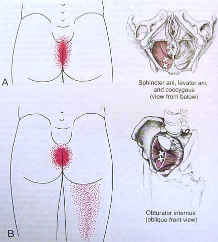 Pelvic Floor Trigger Points by Sphincter Ani Levator Ani Coccygeus Obturator In
