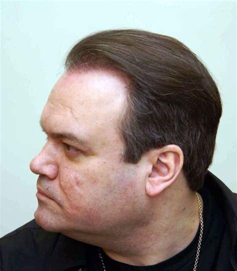 sean coronation street hair treatment sean coronation street hair tansplant todd grimshaw