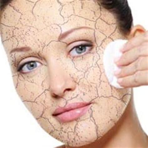 pelle disidratata alimentazione pelle disidratata rimedi naturali trattamento estetico