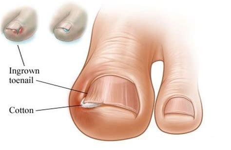 how to treat an ingrown toenail home treatment