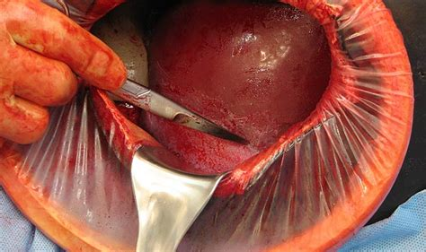 uterus removed during c section emergency obstetrics simulator operative experience inc