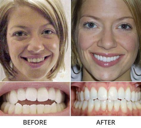 invisalign dental care  stamford