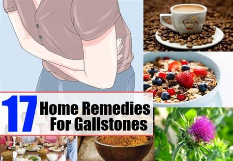 17 home remedies for gallstones treatments