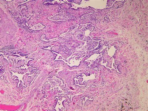 pattern uip pathology outlines usual interstitial pneumonia uip