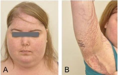 cusions disease cushing syndrome symptoms pictures causes tests