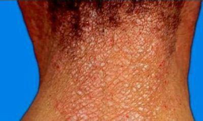 Obat Gatal Eksim Di Leher obat gatal alami penyakit dermatitis obat sipilis gatal
