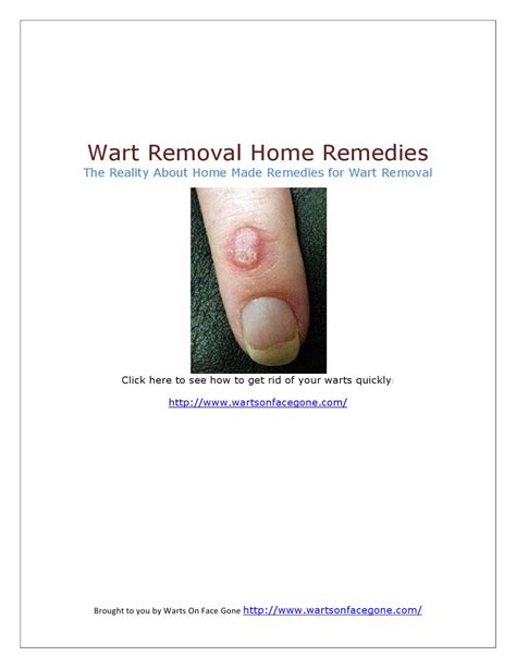 the reality about home remedies for wart removal by cole