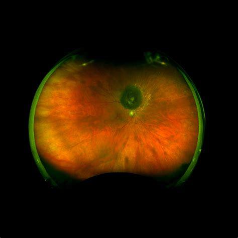 what color is melanoma choriodal melanoma recognizing pathology optos