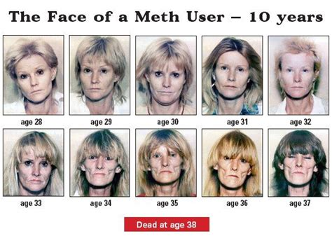 Meth Detox Period by Meth User For 10 Years Drugs Before And After