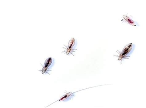 Types Of Bugs Found In Hair by Need Weekly Lice Checks Pharmacists