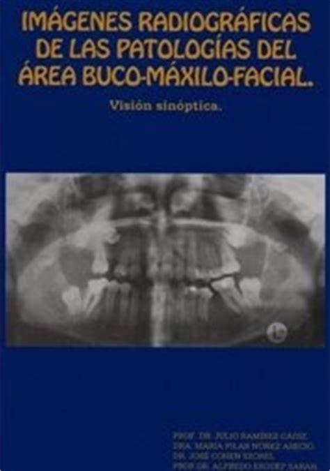imagenes radiograficas pdf la gran biblioteca medica im 225 genes radiogr 225 ficas de las