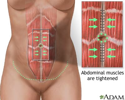 abdominoplasty series
