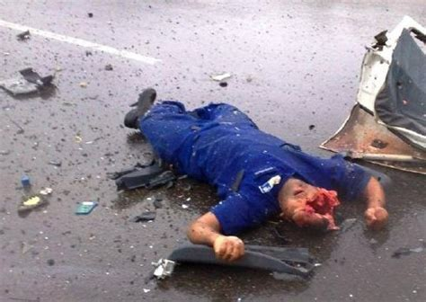 imagenes fuertes de gente muerta horrible accidente automovil 237 stico deja a un hombre sin