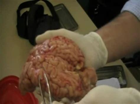 Imagenes Reales Cerebro Humano   diseccion del cerebro 1 youtube
