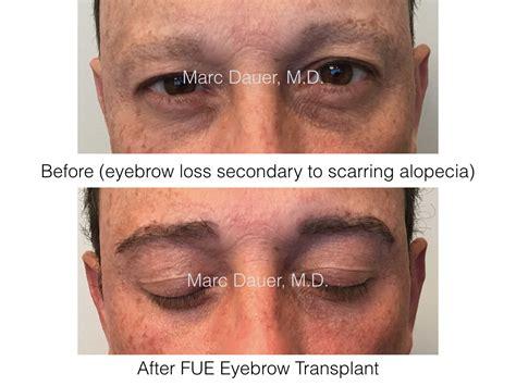 eyebrow transplant spiky hairs eyebrow transplantation archives hair transplant los
