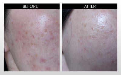 Dsc Derma Scar Gel Penghilang Bekas Luka 540 needles microneedle derma roller micro needle skin therapy system pilih ukuran miss lie