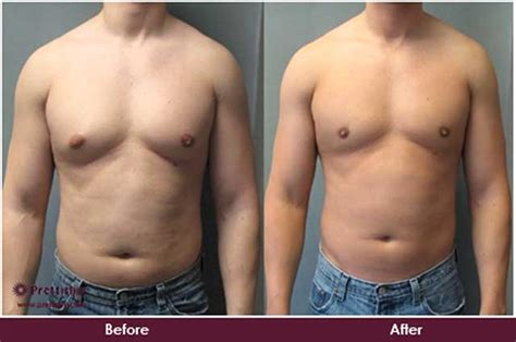 Liposuction Or Weight Loss by Gynecomastia Treatment Without Surgery In Mumbai Prettislim