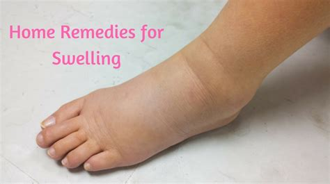 6 best home remedies for swelling