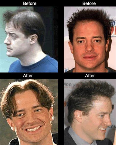 celebrity hair growth hair transplant celebrities hairstylegalleries com