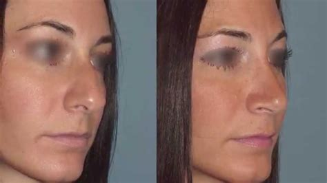 Photo Gallery Before And After Cosmetic Surgeon In The | nyc s top facial plastic surgeon dr robert guida s female