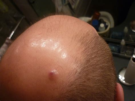 does hair bumps hurt red spot on my scalp dog breeds picture