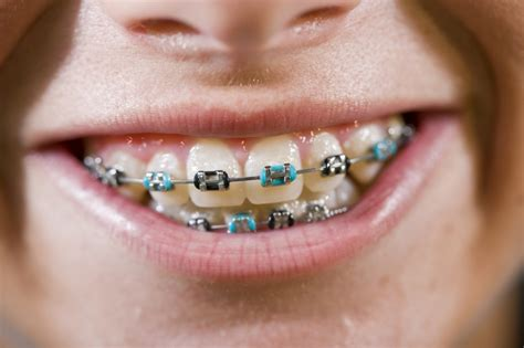 coloured braces guildford orthodontics surrey bc