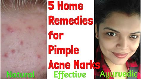 pimple marks scars removal at home naturally home remedy