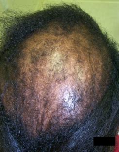 can people with severe alopecia get braids cicatricial alopecia