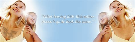 affordable tattoo removal dfw removal dallas fort worth removal