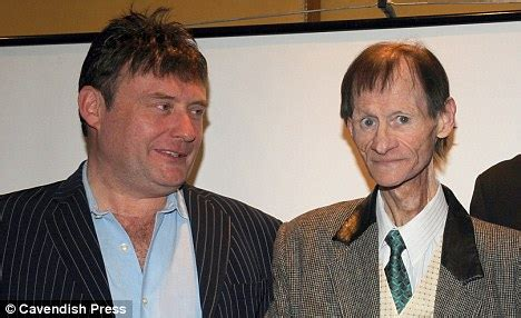 jimmy white hair transplant or wig jimmy white hair transplant or wig jimmy white hair