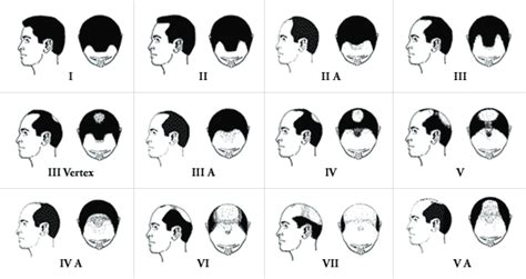 male pattern baldness quiz balding blog photos archives page 4 of 22 hair loss
