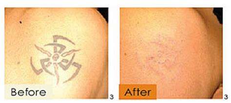 tattoo removal japan laser hair removal tokyo japan tattoo removal ipl laser