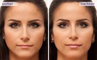 lippen aufspritzen vorher nachher galerie lippenkorrektur
