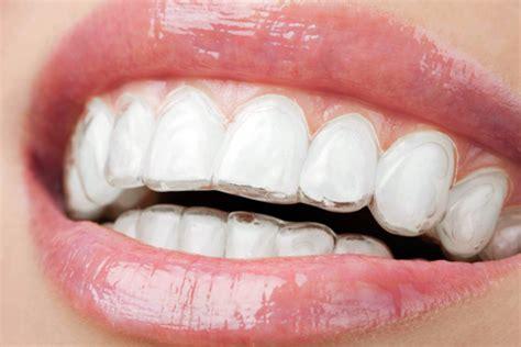 apparecchio denti interno costi apparecchio trasparente costo trattamento marmo cucina