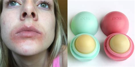 eos in eos responds to lawsuit after users claim lip balm causes