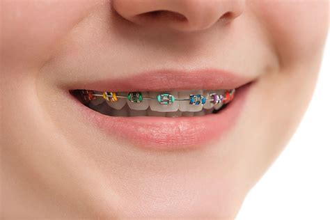 braces color ideas guide to colors braces in las vegas nv